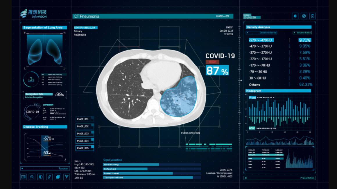 tecnologie emergenti che dimostrano valore nella lotta al coronavirus cinese cardiologia diagnostica e interventistica 1160x652 - la lotta al coronavirus utilizza le TECNOLOGIE digitali EMERGENTI come la AI